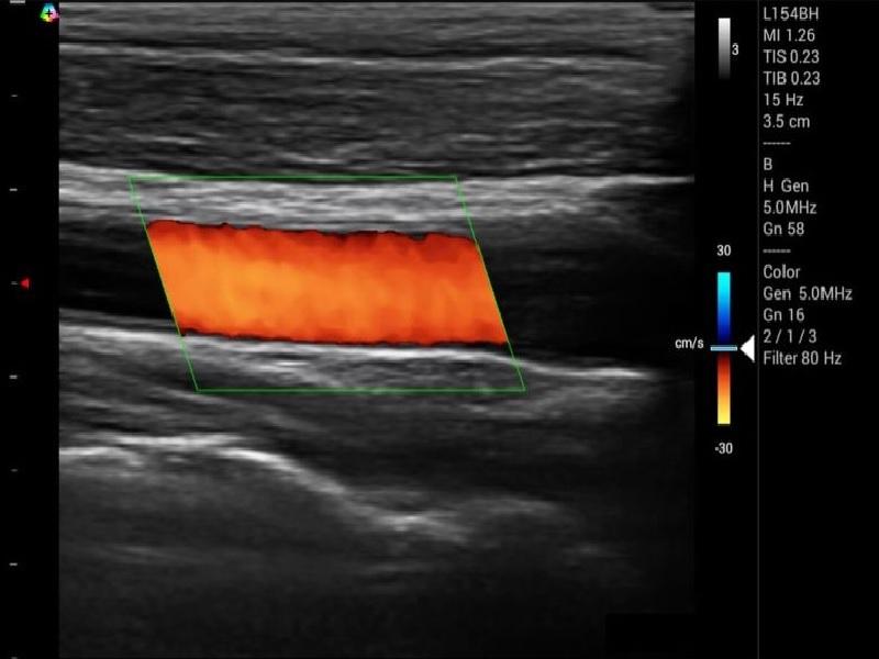 Taşınabilir Tablet Ultrason Cihazı